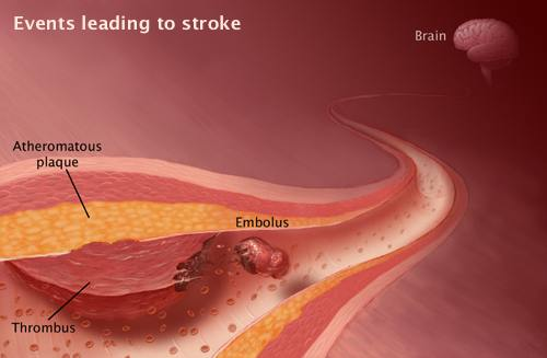 Embolic Stroke – Common Causes and Prevention