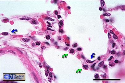 alveoli2 human physiology respiration